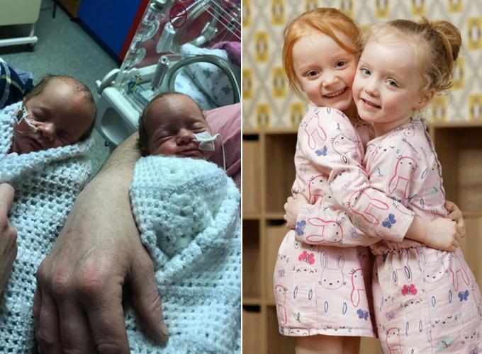 Cặp song sinh mới chào đời Ella - Ava và hai chị gái sinh đôi Lexie - Lola, hiện 5 tuổi. Ảnh: Athena Picture Agency.