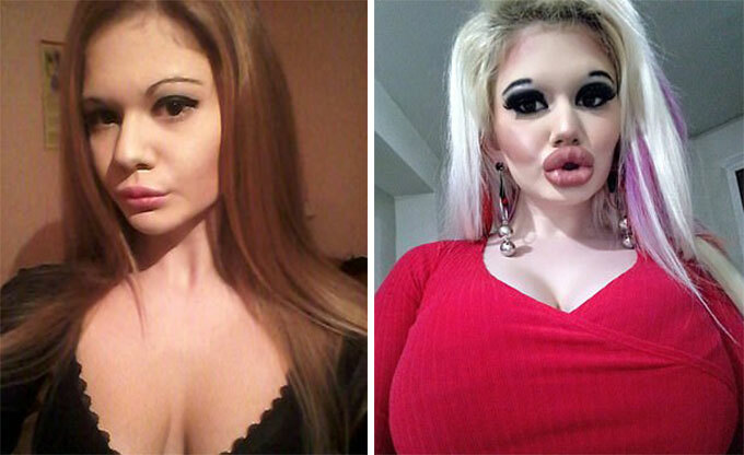 Andrea Emilova Ivanova trước và sau khi bơm môi. Ảnh: Tiêm filler 20 lần để có đôi môi dày nhất thế giới