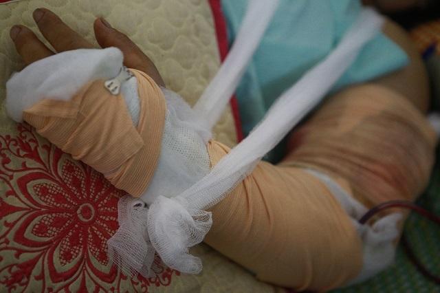 8 bệnh nhân bị thương nặng sau vụ sập xưởng gỗ.
