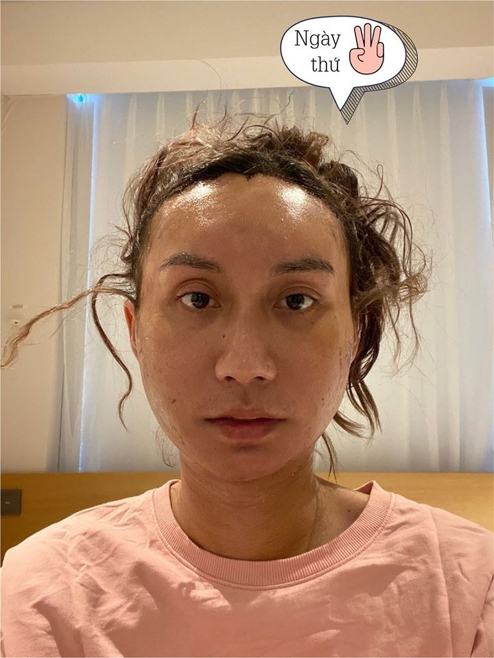 Gương mặt nữ ca sĩ sưng, phù nề sau 3 ngày làm phẫu thuật.