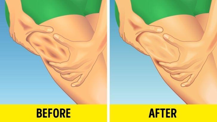 Các bác sĩ da liễu cho rằng thường xuyên thực hiện các liệu pháp massage, con lăn giúp lưu thông máu nhờ đó có thể dần cải thiện tình trạng da sần sùi.