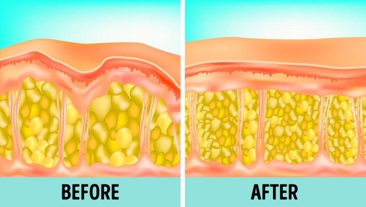 Ngoài ra, hiện nay các chuyên gia cũng có thể thực hiện phẫu thuật bóc tách bớt tế bào mỡ để đưa cấu trúc da trở về trạng thái bằng phẳng hơn. Bên cạnh các phương pháp kể trên, duy trì chế độ ăn uống lành mạnh, uống nhiều nước, hạn chế đường ngọt, tinh bột cũng có tác dụng ngăn ngừa, hạn chế sự xuất hiện của tình trạng da sần vỏ cam.