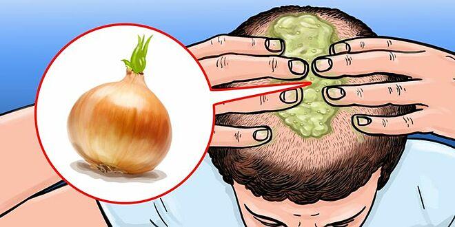 Hành tây giúp kích thích mọc tóc hiệu quả.