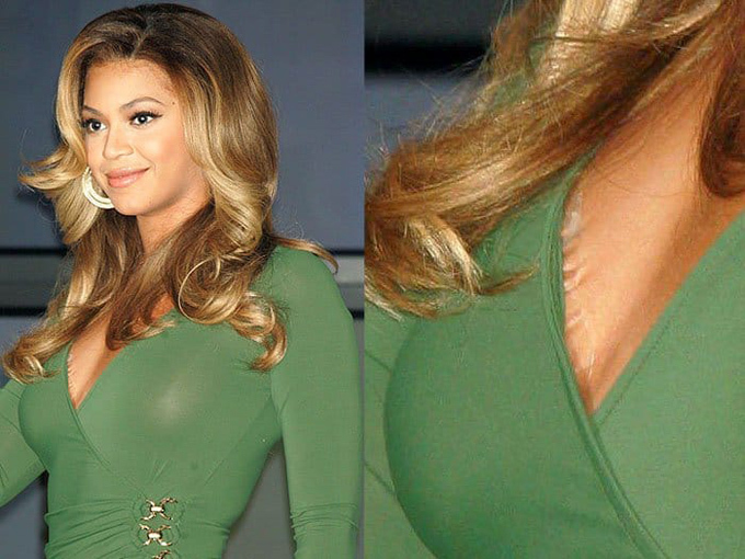 Beyonce còn mất điểm hơn bởi băng dính của cô khiến lớp da bị kéo dúm lại.