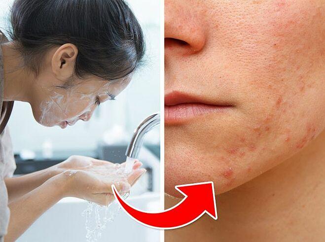 Rửa mặt quá nhiều cũng có thể gây ra mụn.