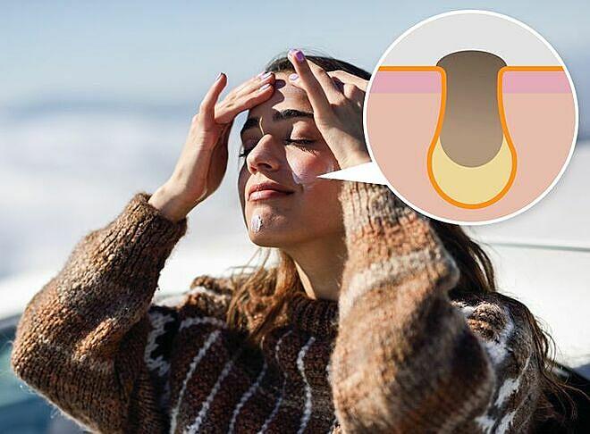 Kem chống nắng có chứa gốc dầu dễ gây ra mụn.