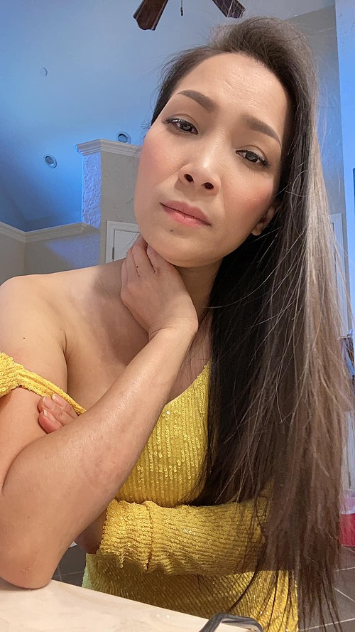 Ca sĩ Hồng Ngọc chụp ảnh camera thường, không ngại để lộ làn da bị tổn thương sau sự cố bỏng.