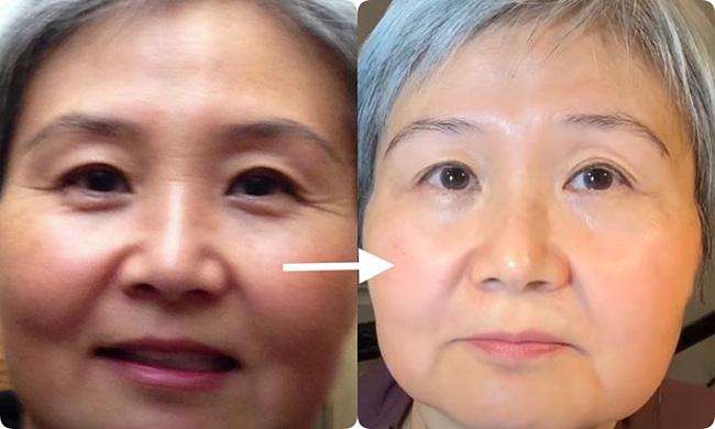 Làn da của bà Lily cải thiện thấy rõ sau khi dùng sản phẩm retinol.