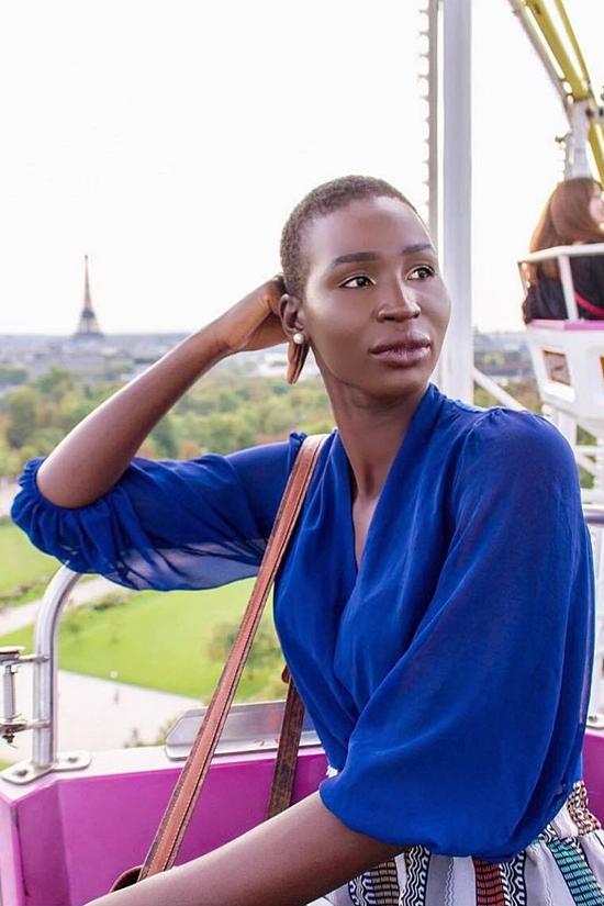 Bù lại, Nova có câu chuyện cảm hứng mạnh mẽ. Người đẹp vốn sinh ra ở Kenya. Khi cô lên 6 tuổi, vì ảnh hưởng của cuộc nội chiến của quốc gia non trẻ láng giềng - Nam Sudan - gia đình của Nova phải ly tán. Cô được gửi đến Canada một mình với hy vọng có cuộc sống tốt đẹp hơn. Nhiều năm qua, Nova vẫn chưa được đoàn tụ với người thân.
