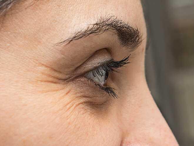 Nếp nhăn khóe mắt là một trong những dấu hiệu cho thấy bạn đang bị căng thẳng.