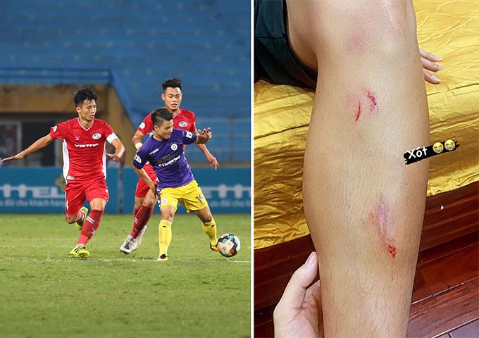 Chân trái đầy vết xước của Bùi Tiến Dũng sau trận đấu vất vả với Hà Nội. Ảnh: Đương Phạm & Khánh Linh.
