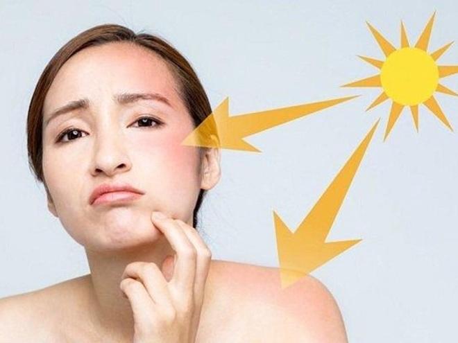 Tia UV ảnh hưởng nghiêm trọng đến sức khỏe làn da.