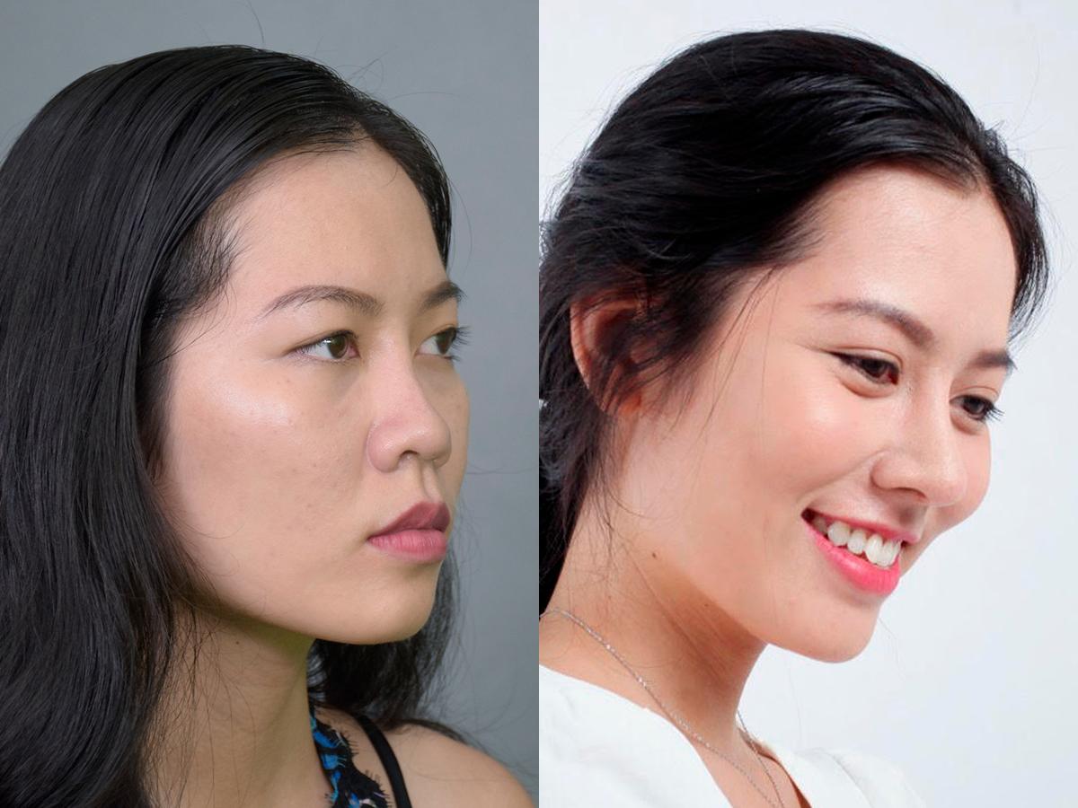 Nữ khách hàng tự tin với gương mặt thanh tú sau khi nâng mũi J-KO. Ảnh: JK Nhật Hàn