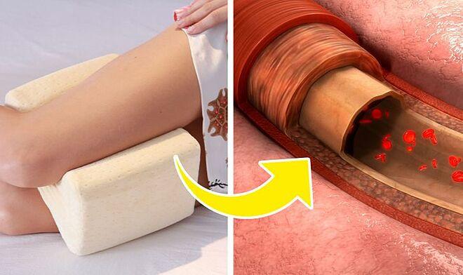 Kẹp gối giữa hai chân giúp cải thiện tuần hoàn máu.