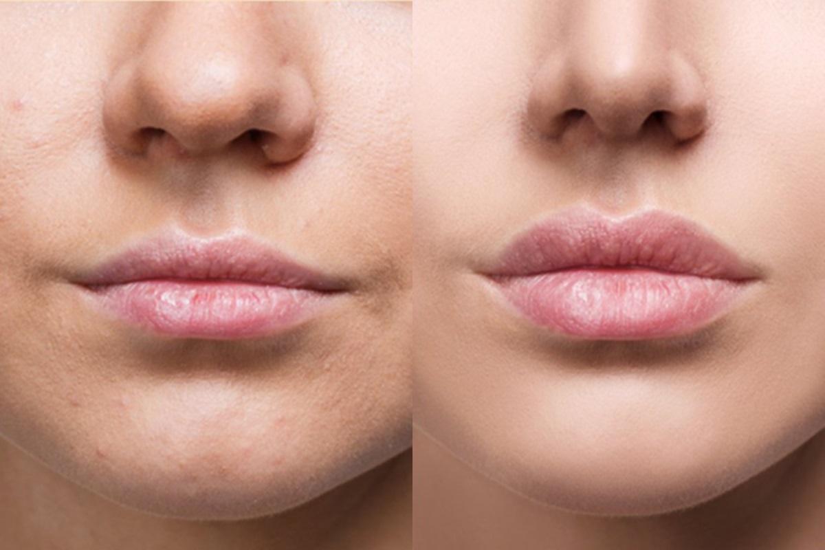 Gương mặt cải thiện sau khi trẻ hóa với botox.