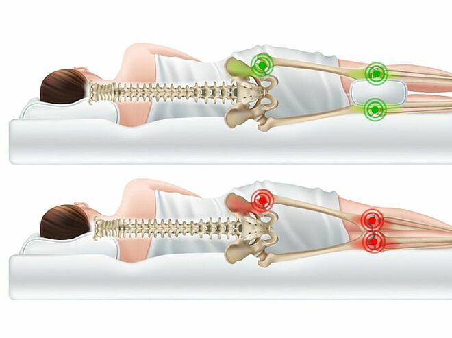 Nếu bị đau khớp gối, hãy kẹp một chiếc gối giữa hai chân lúc ngủ để cải thiện tình trạng.