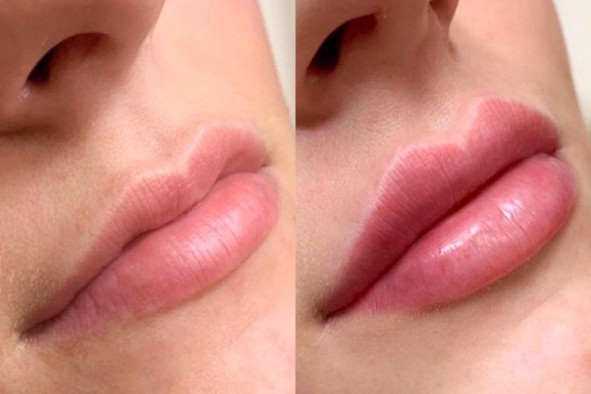 Với 30 phút ứng dụng công nghệ filler tại Khơ Thị, chị em có thể sở hữu đôi môi như mong muốn.
