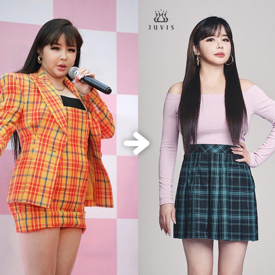 Park Bom khẳng định sức khỏe của cô có nhiều cải thiện tích cực sau khi giảm 11 kg.